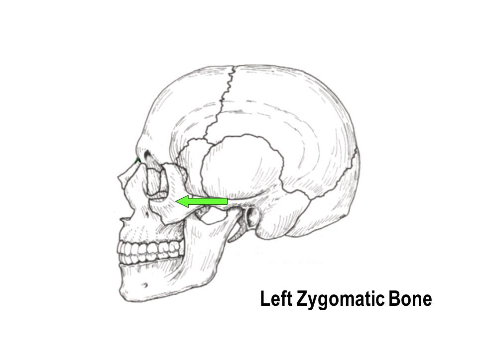 Left Zygomatic Bone