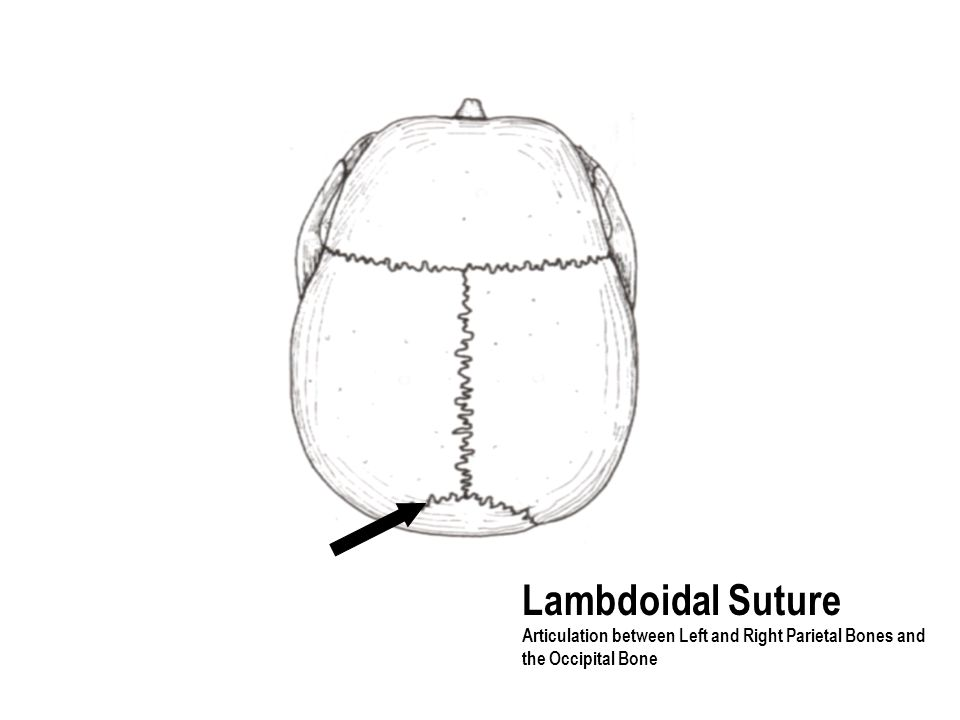Lambdoidal Suture Articulation between Left and Right Parietal Bones and the Occipital Bone