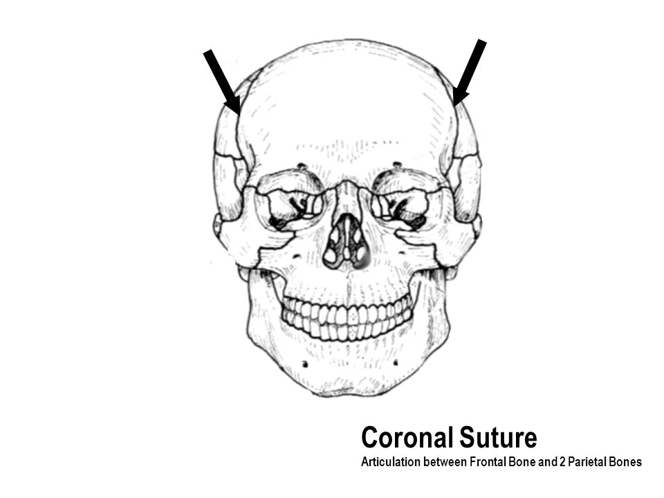 Coronal Suture Articulation between Frontal Bone and 2 Parietal Bones