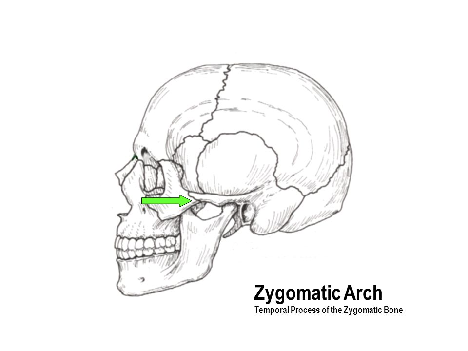 Zygomatic Arch Temporal Process of the Zygomatic Bone