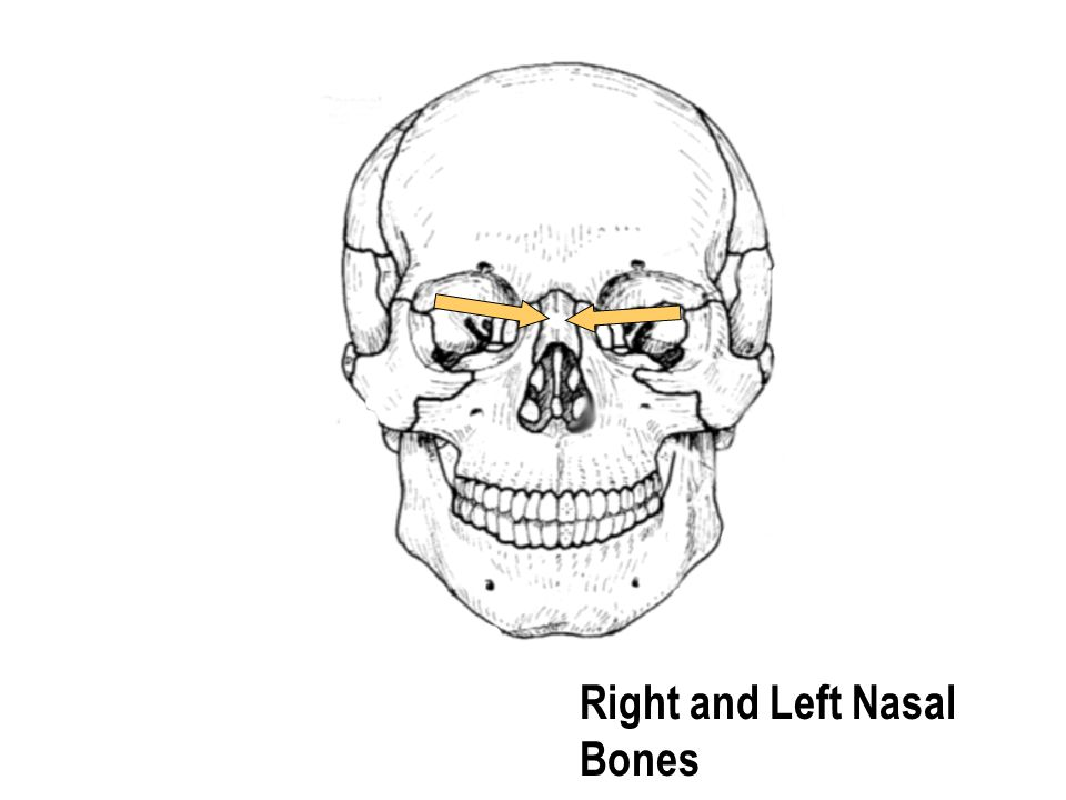 Right and Left Nasal Bones
