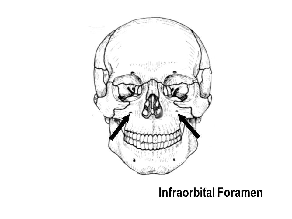 Infraorbital Foramen