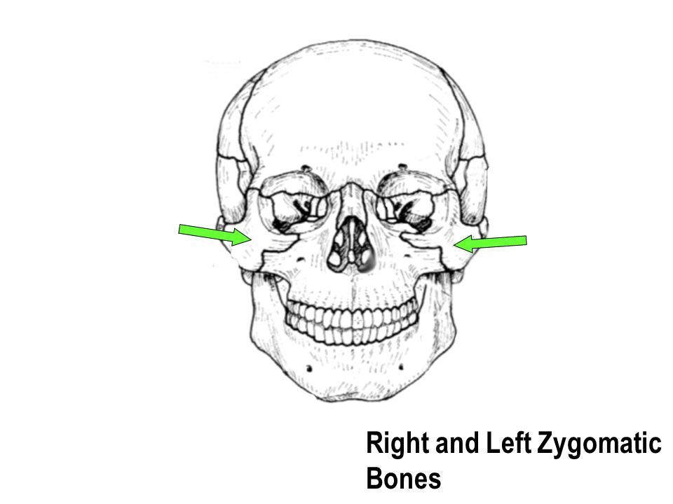 Right and Left Zygomatic Bones