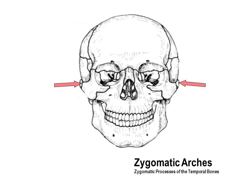 Zygomatic Arches Zygomatic Processes of the Temporal Bones