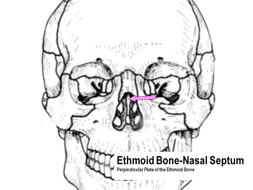 Ethmoid Bone-Nasal Septum