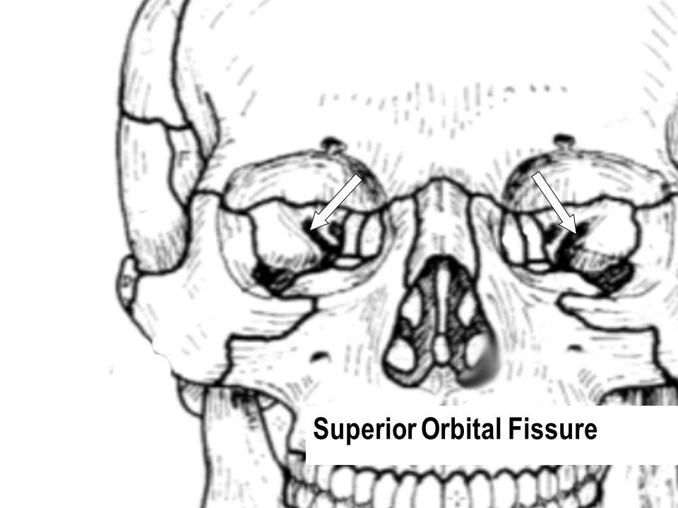 Superior Orbital Fissure