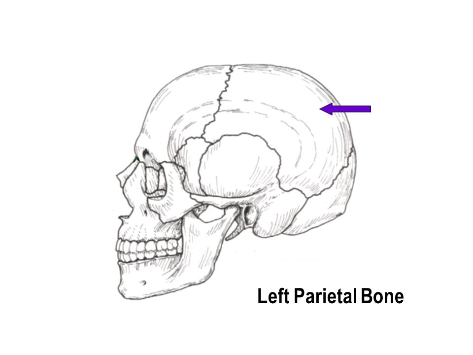 Left Parietal Bone