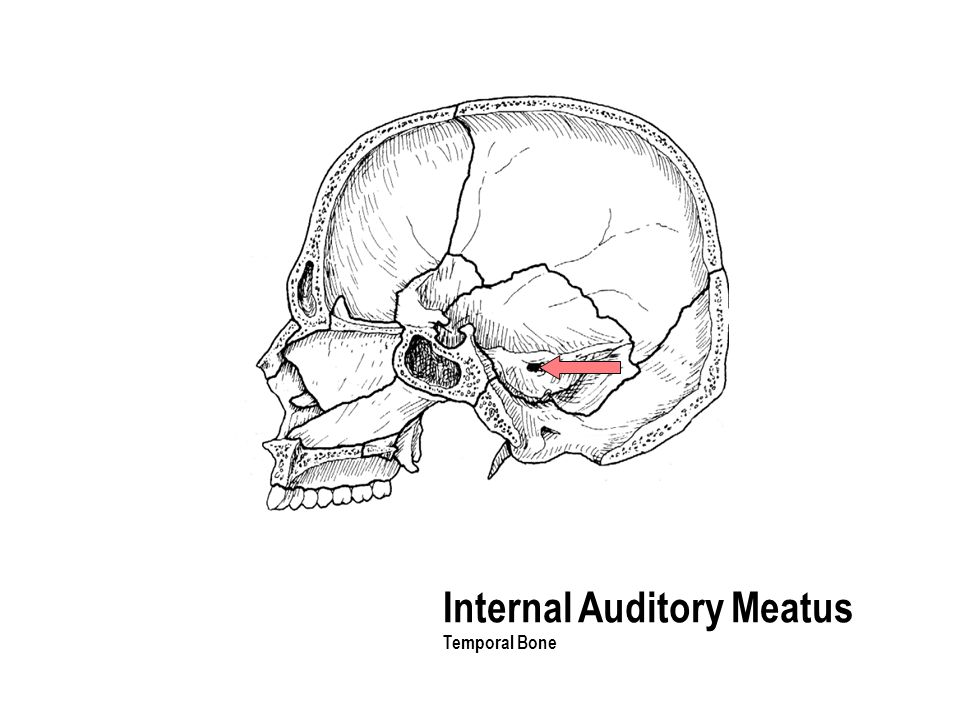 Internal Auditory Meatus