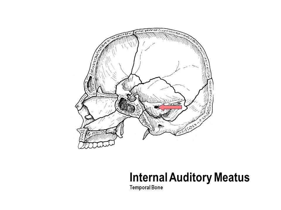 Internal Auditory Meatus