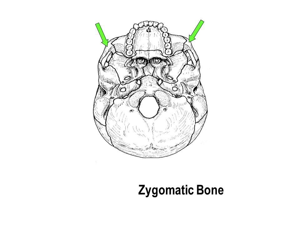 Zygomatic Bone The part with the holes The part with the holes