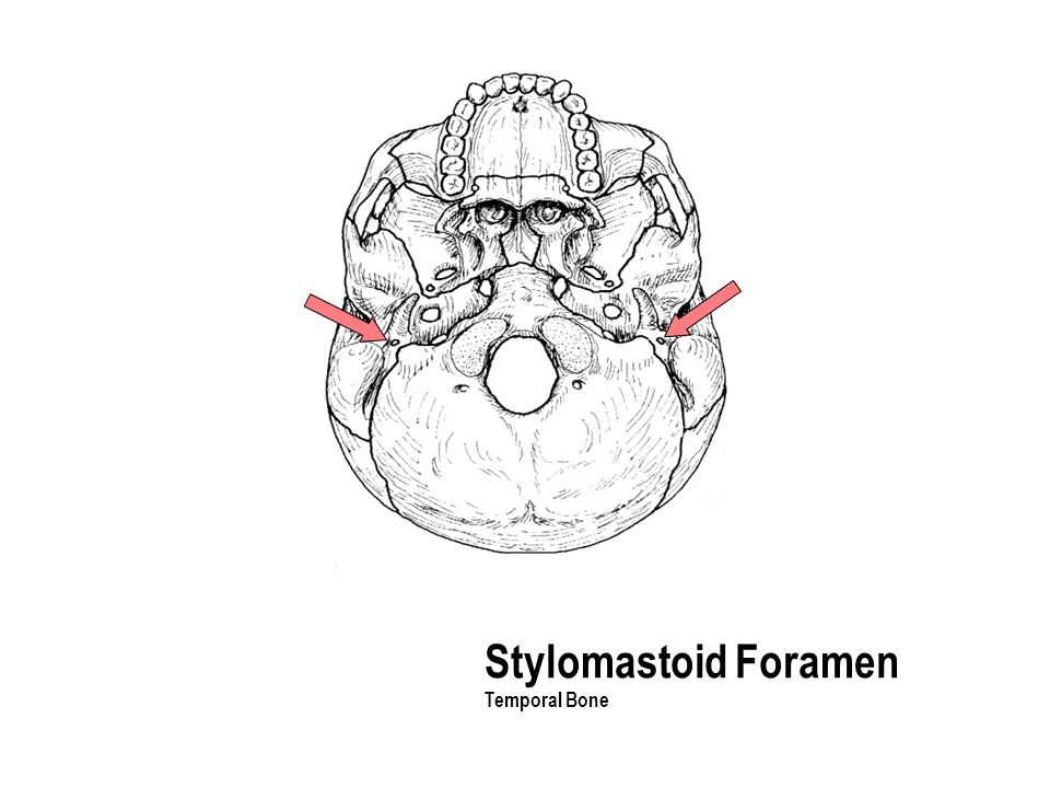 Stylomastoid Foramen Temporal Bone The part with the holes