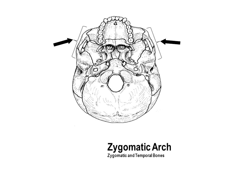 Zygomatic Arch Zygomatic and Temporal Bones The part with the holes
