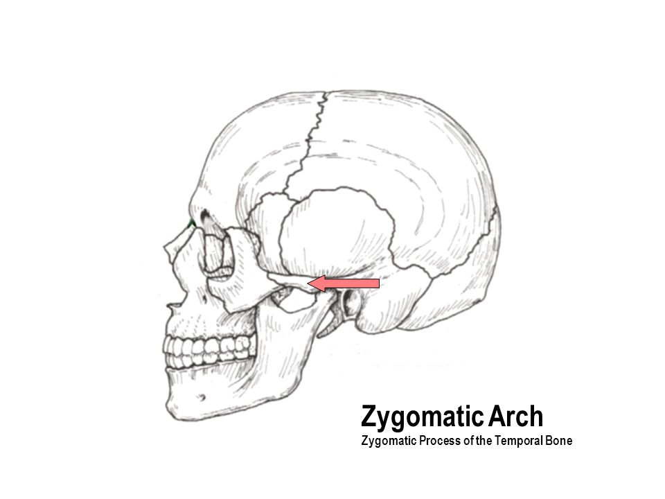 Zygomatic Arch Zygomatic Process of the Temporal Bone