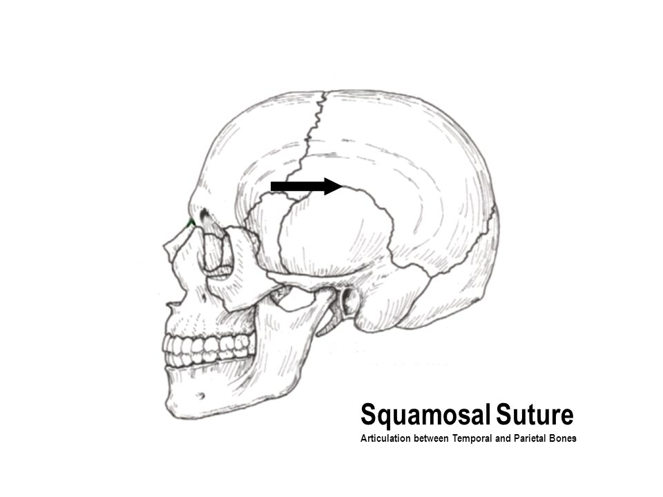 Squamosal Suture Articulation between Temporal and Parietal Bones