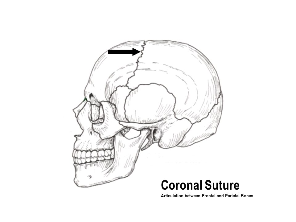 Coronal Suture Articulation between Frontal and Parietal Bones