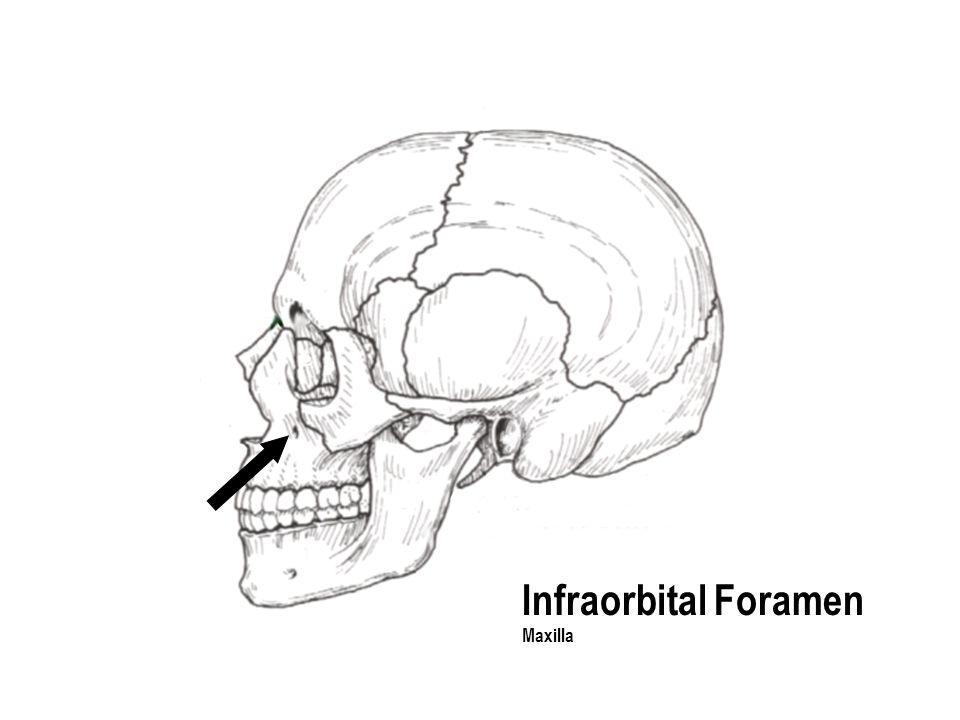 Infraorbital Foramen Maxilla