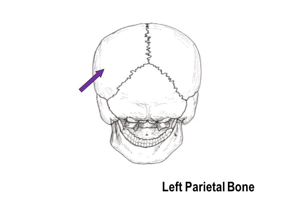 Left Parietal Bone