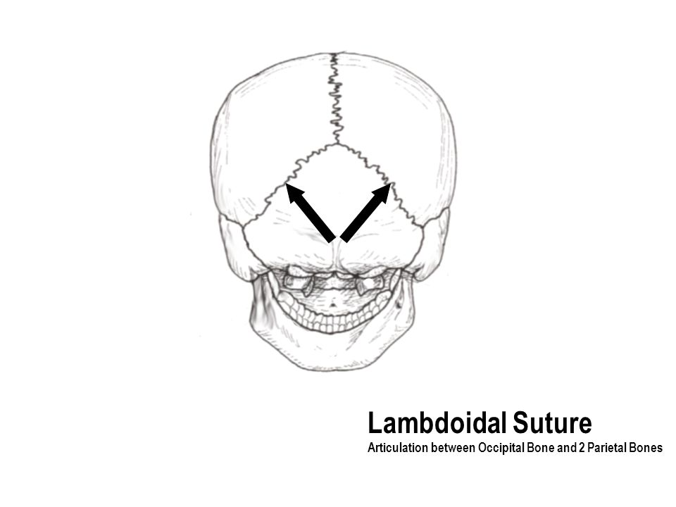 Lambdoidal Suture Articulation between Occipital Bone and 2 Parietal Bones