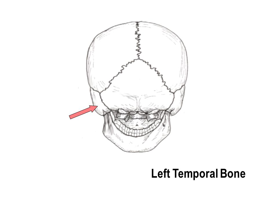 Left Temporal Bone
