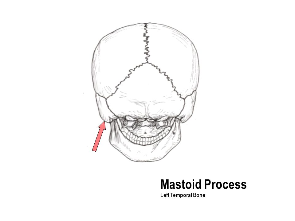 Mastoid Process Left Temporal Bone