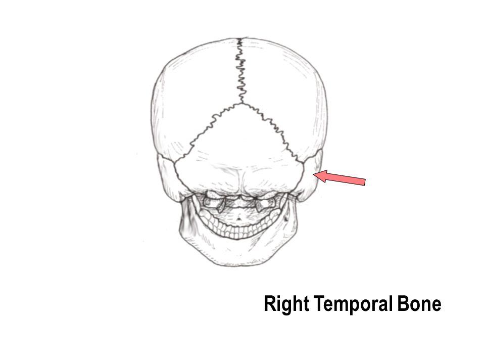 Right Temporal Bone