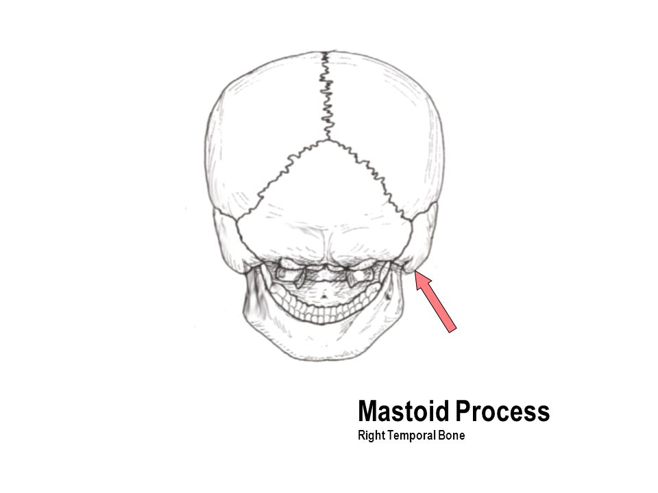 Mastoid Process Right Temporal Bone