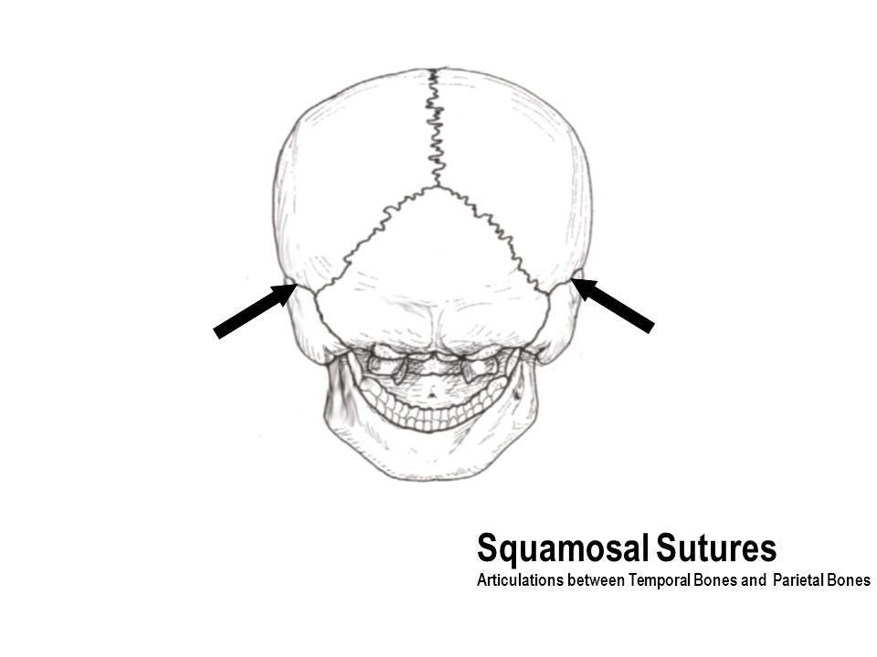 Squamosal Sutures Articulations between Temporal Bones and Parietal Bones