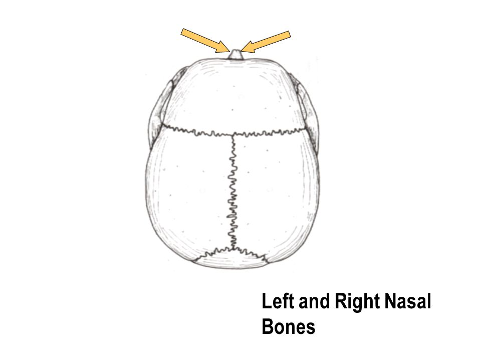 Left and Right Nasal Bones