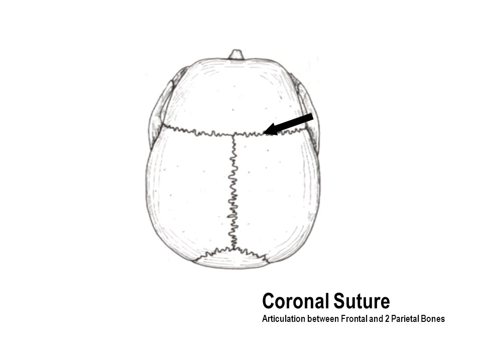 Coronal Suture Articulation between Frontal and 2 Parietal Bones