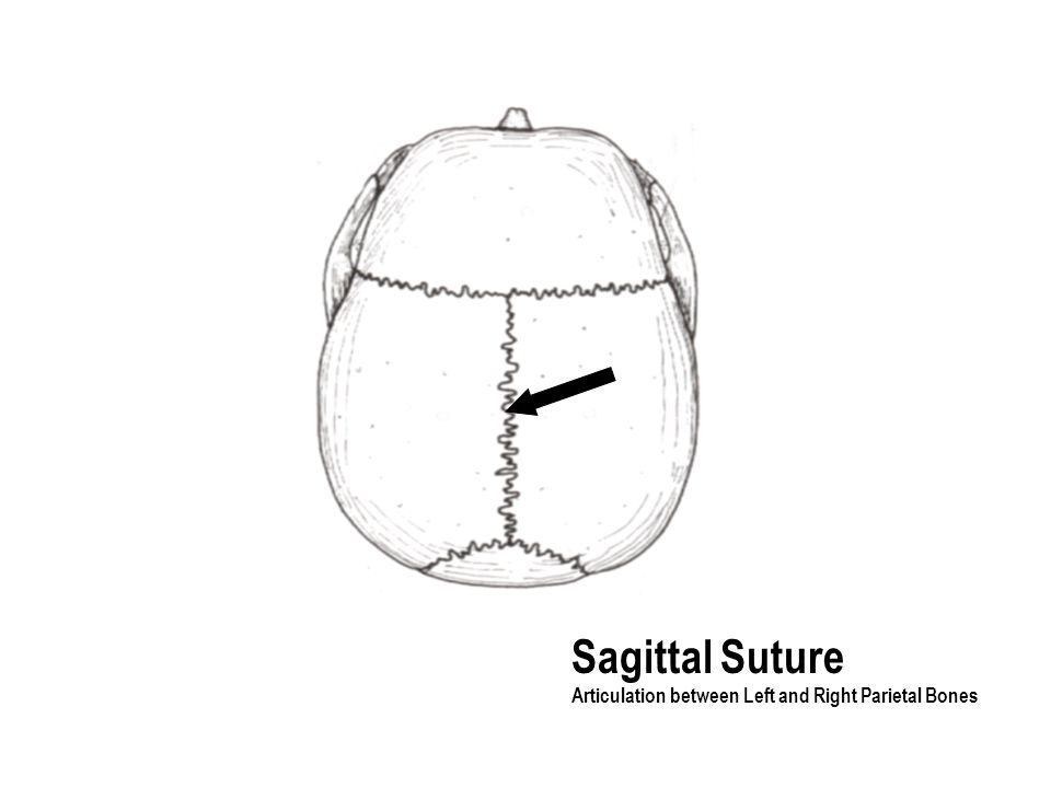 Sagittal Suture Articulation between Left and Right Parietal Bones