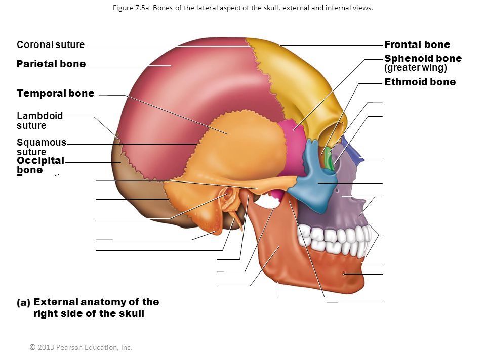 // Coronal suture Frontal bone Sphenoid bone Parietal bone