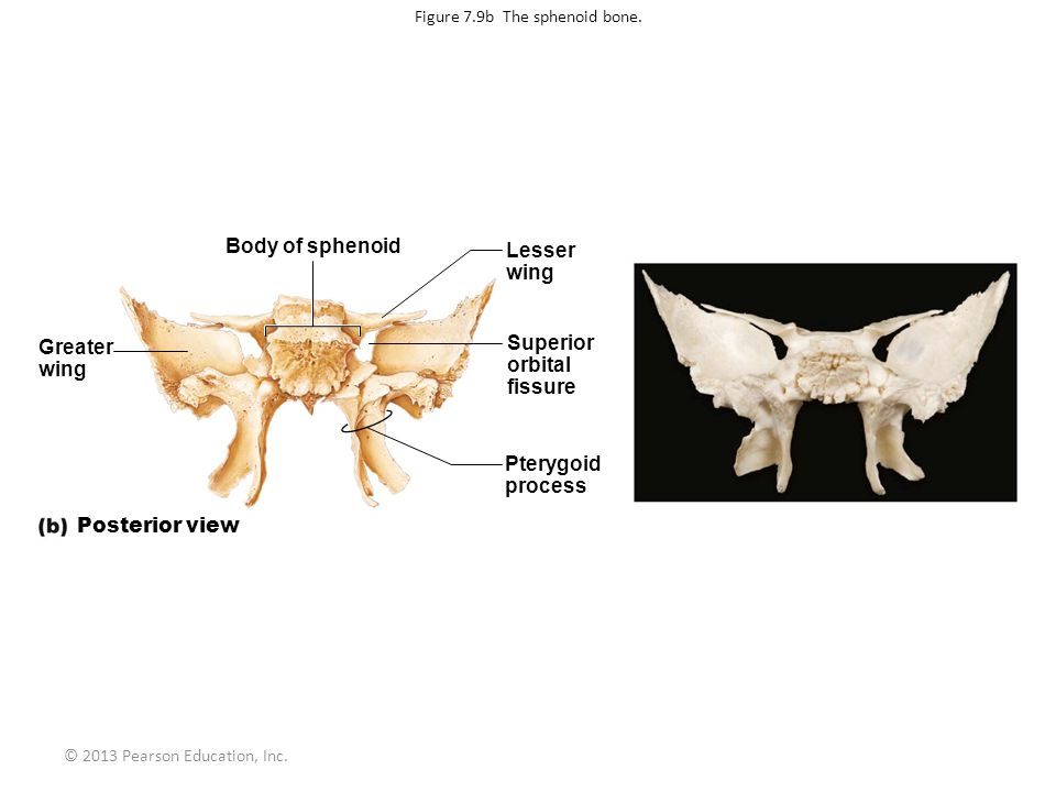 Figure 7.9b The sphenoid bone.