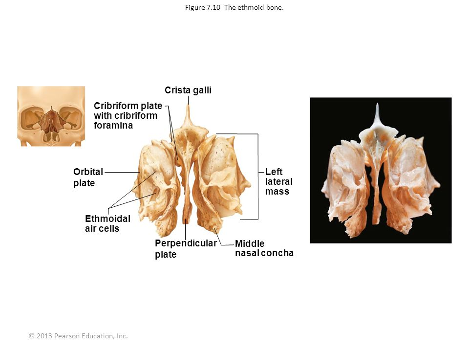 Figure 7.10 The ethmoid bone.