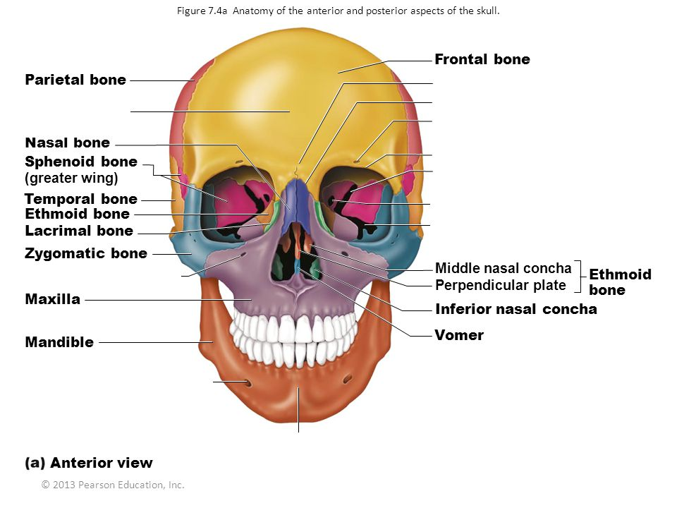 Frontal bone Parietal bone Glabella Frontonasal suture Squamous part