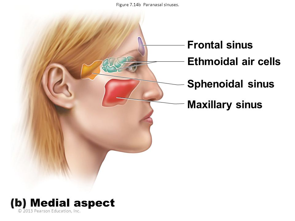 Figure 7.14b Paranasal sinuses.