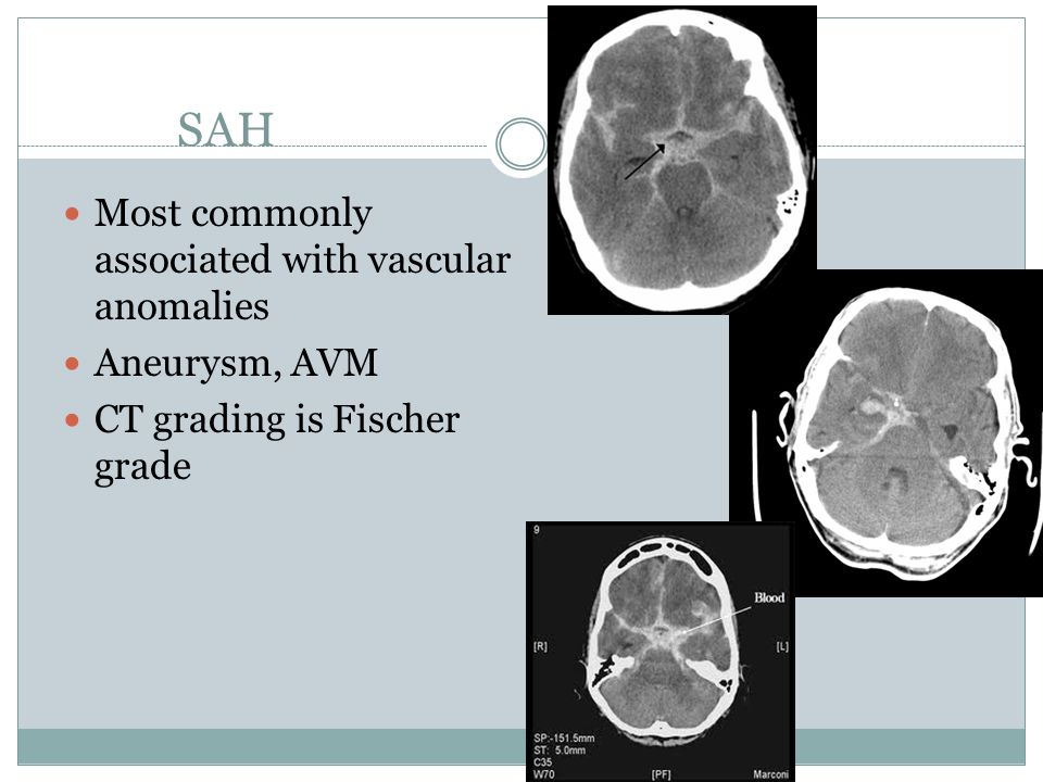 SAH Most commonly associated with vascular anomalies Aneurysm, AVM