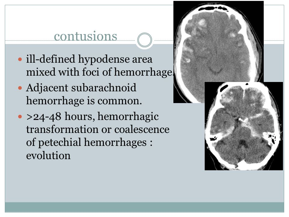 contusions ill-defined hypodense area mixed with foci of hemorrhage.