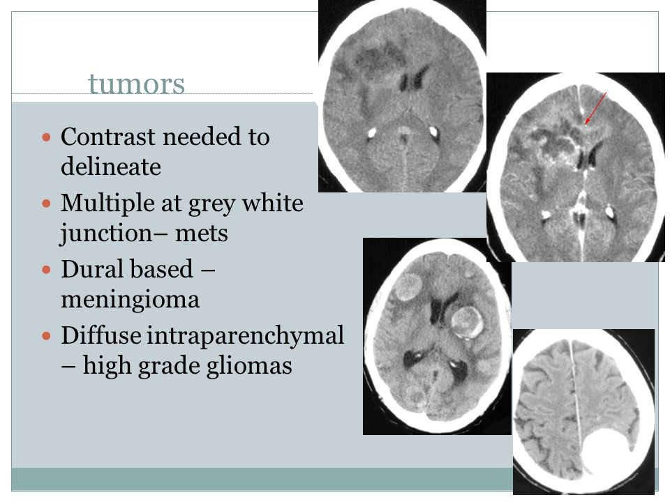 tumors Contrast needed to delineate