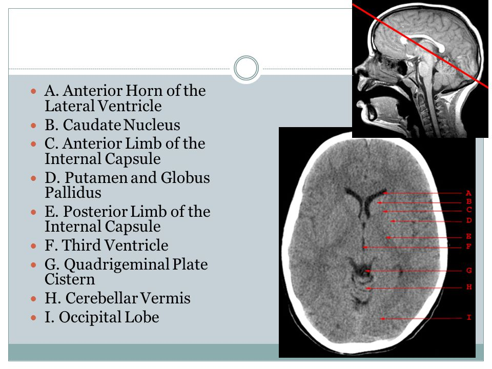 A. Anterior Horn of the Lateral Ventricle