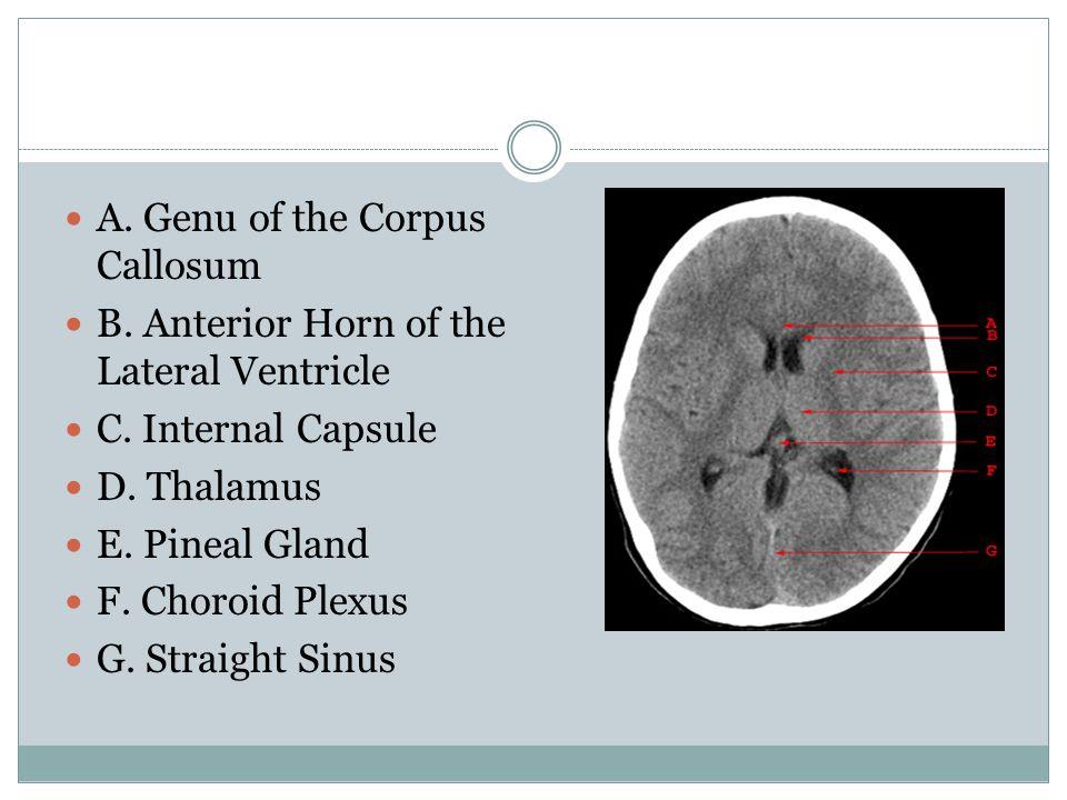 A. Genu of the Corpus Callosum