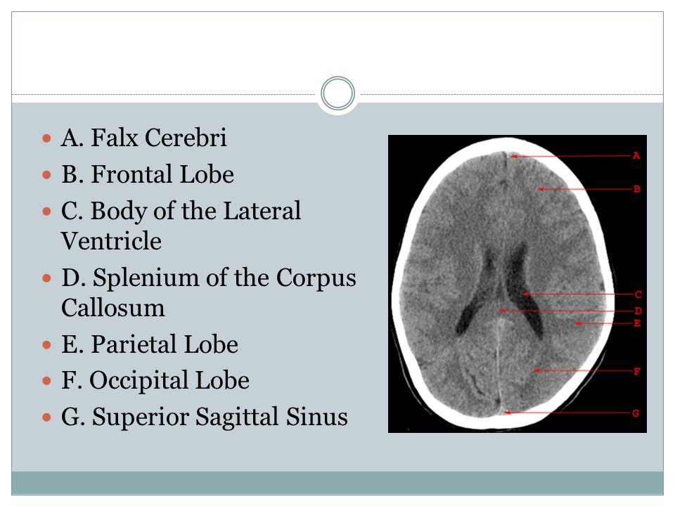 A. Falx Cerebri B. Frontal Lobe. C. Body of the Lateral Ventricle. D. Splenium of the Corpus Callosum.