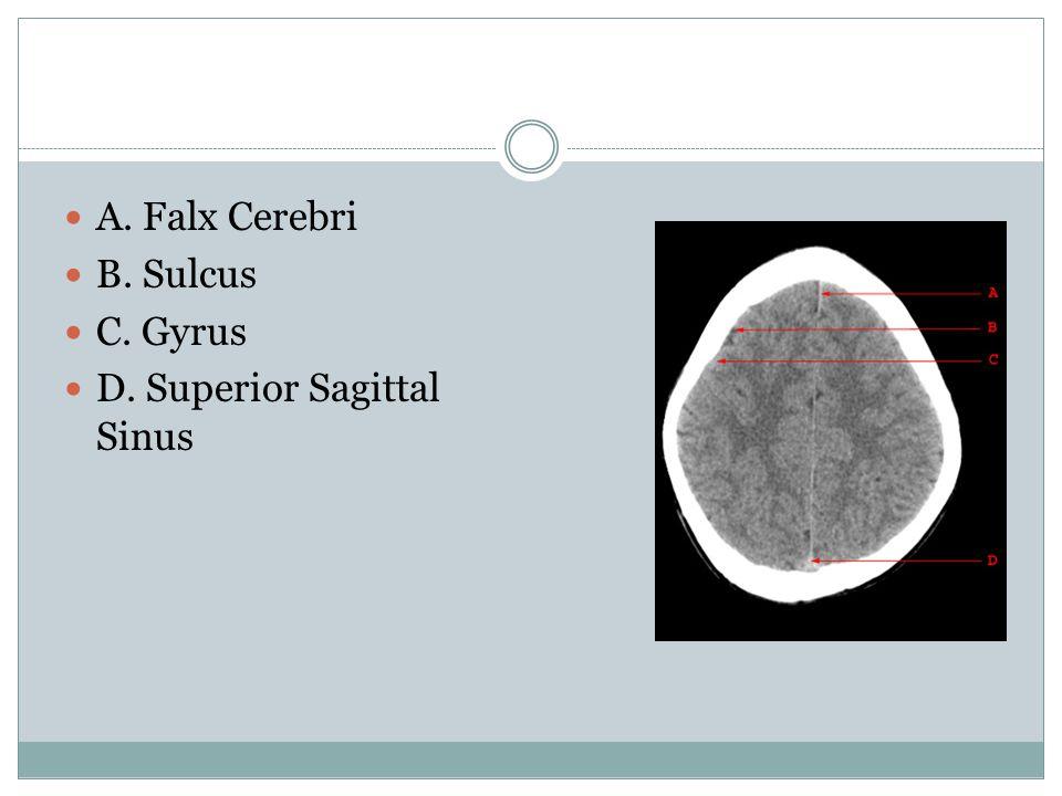 A. Falx Cerebri B. Sulcus C. Gyrus D. Superior Sagittal Sinus
