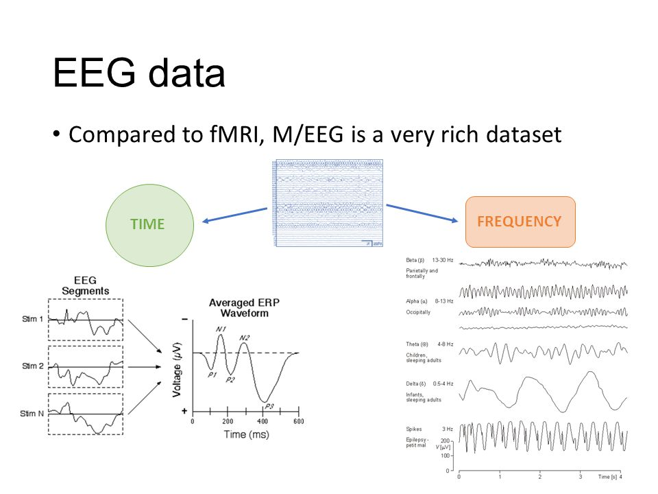 EEG data Compared to fMRI, M/EEG is a very rich dataset TIME FREQUENCY