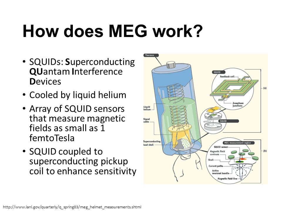How does MEG work SQUIDs: Superconducting QUantam Interference Devices. Cooled by liquid helium.