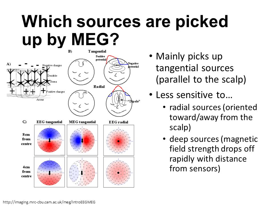 Which sources are picked up by MEG