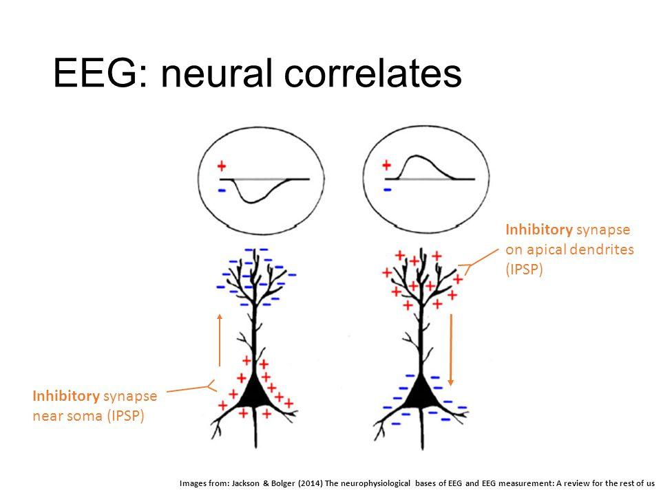 EEG: neural correlates