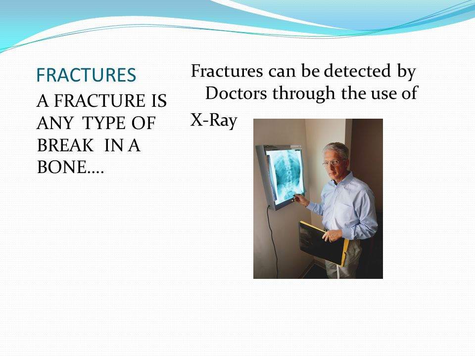 FRACTURES Fractures can be detected by Doctors through the use of X-Ray A FRACTURE IS ANY TYPE OF BREAK IN A BONE….