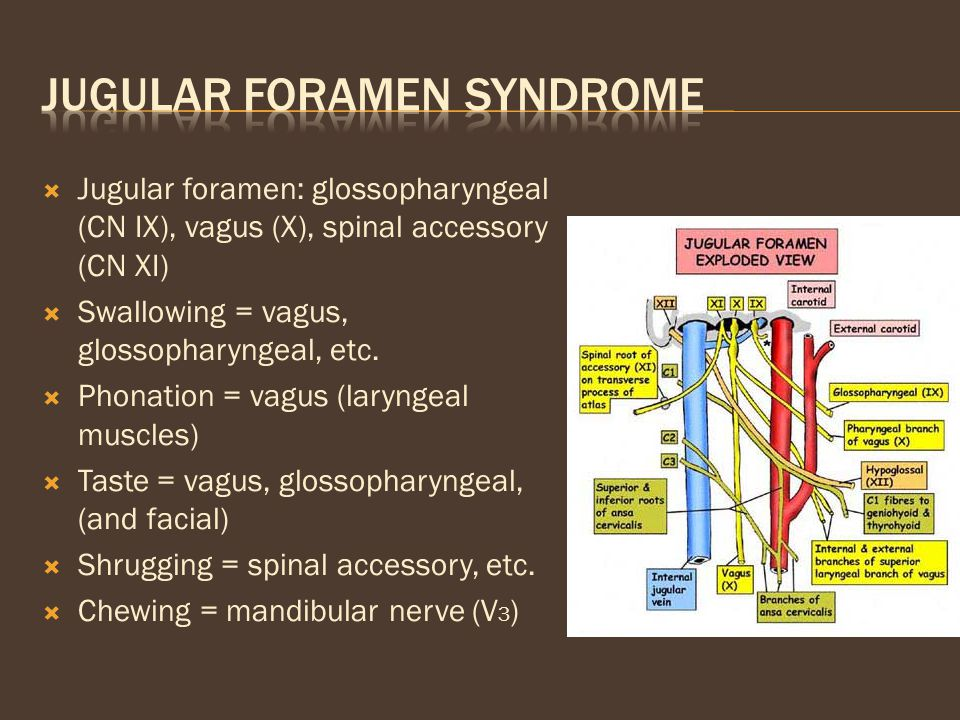 Jugular foramen syndrome