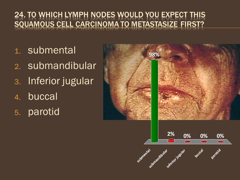 submental submandibular Inferior jugular buccal parotid