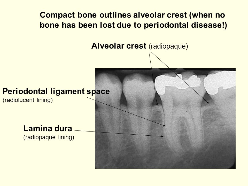 Compact bone outlines alveolar crest (when no bone has been lost due to periodontal disease!)